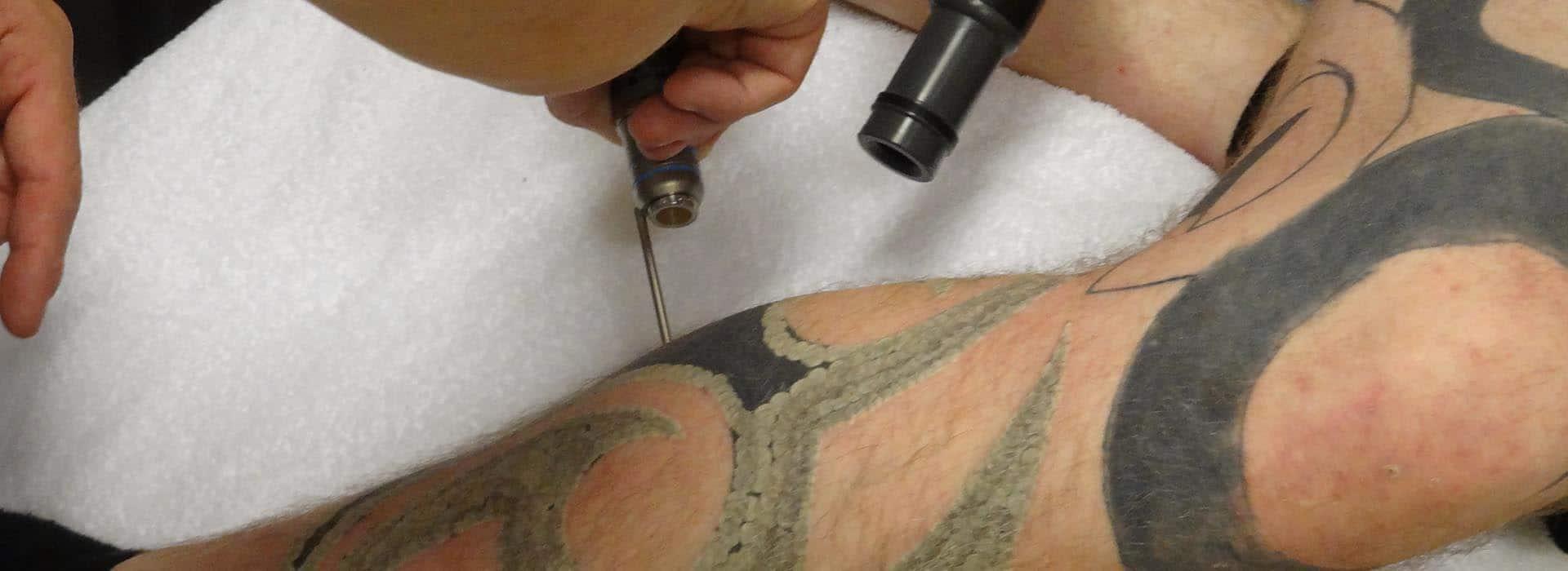 Tattoeage verwijderen