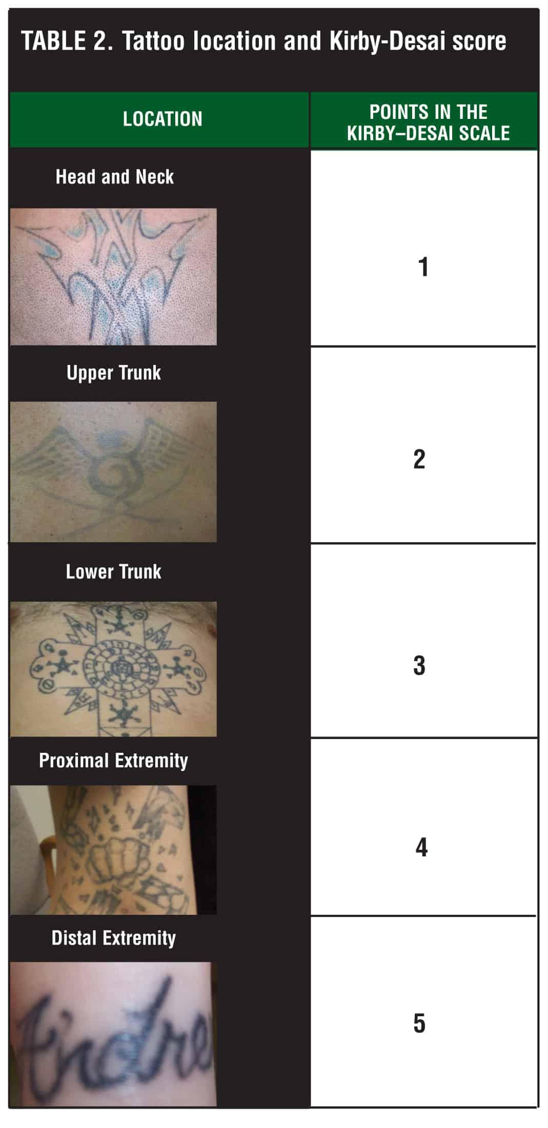 Nabehandeling tatoeage verwijderen