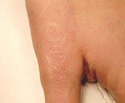 tattoo removal na 1