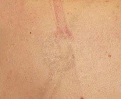 tattoo removal na