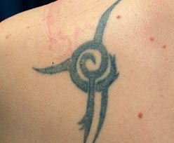 tattoo removal voor