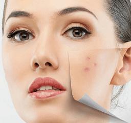 acne laser behandeking