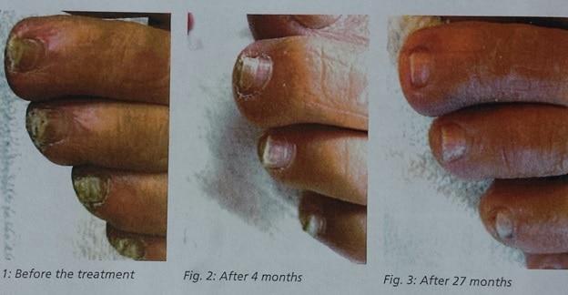 schimmel nagel